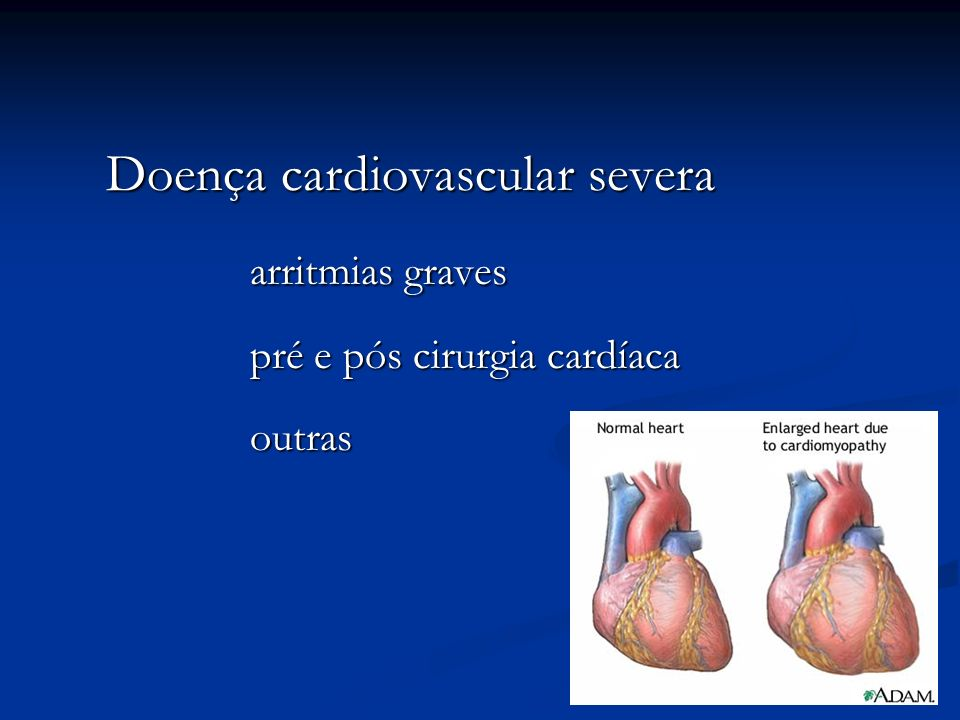 Doença cardiovascular severa arritmias graves pré e pós cirurgia cardíaca outras