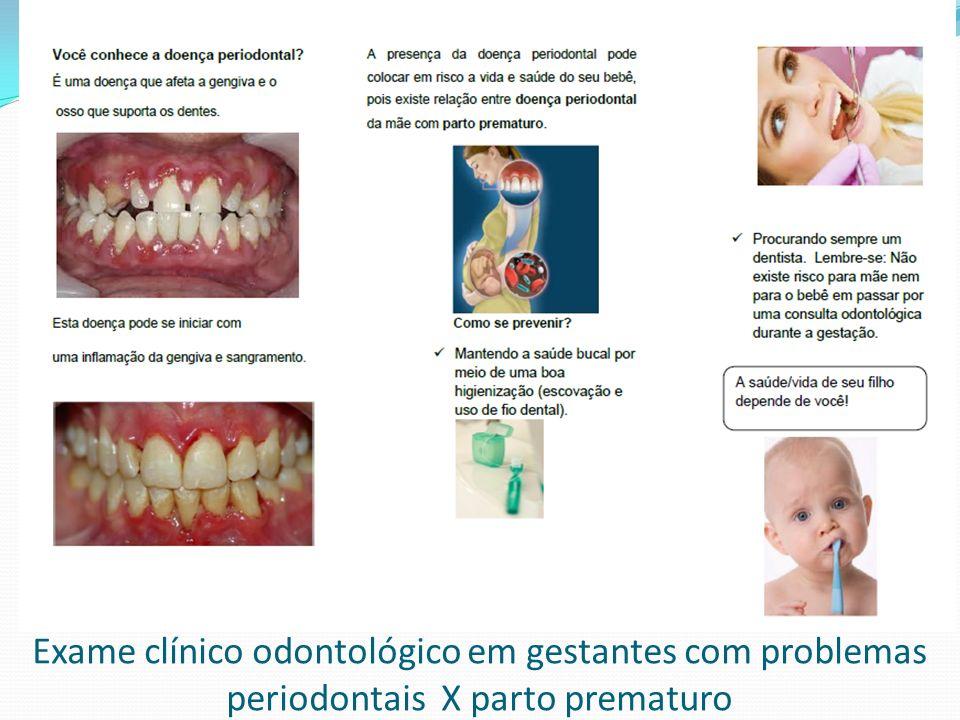 Exame clínico odontológico em gestantes com problemas periodontais X parto prematuro