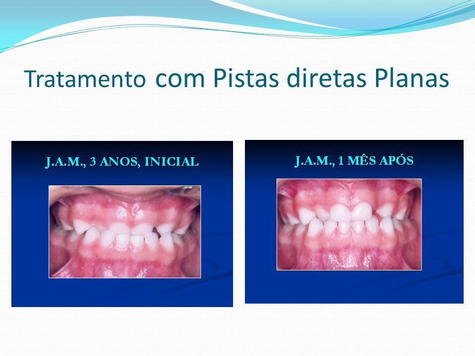 LEVANTAMENTO EPIDEMIOLÓGICO NAS CRIANÇAS DE 5, 12 ANOS EM IBIPORÃ- PR, 2012.