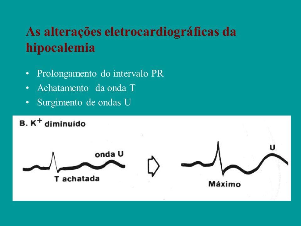 As alterações eletrocardiográficas da hipocalemia Prolongamento do intervalo PR Achatamento da onda T Surgimento de ondas U