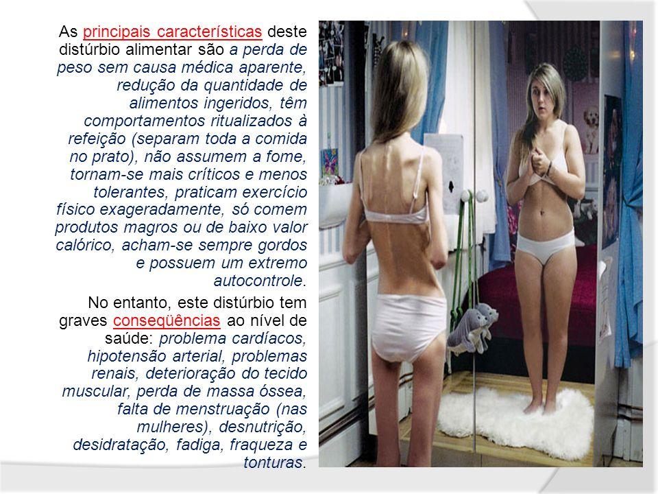 Drunkorexia, ou anorexia alcoólica termo criado nos EUA para definir o alcoolismo associado a distúrbios alimentares.