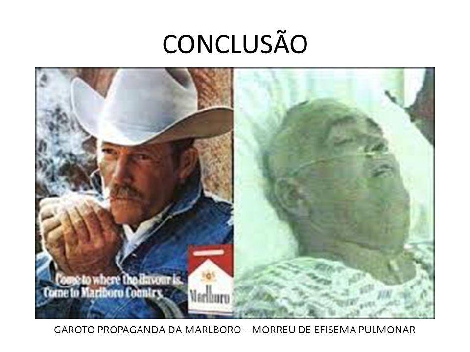CONCLUSÃO GAROTO PROPAGANDA DA MARLBORO – MORREU DE EFISEMA PULMONAR
