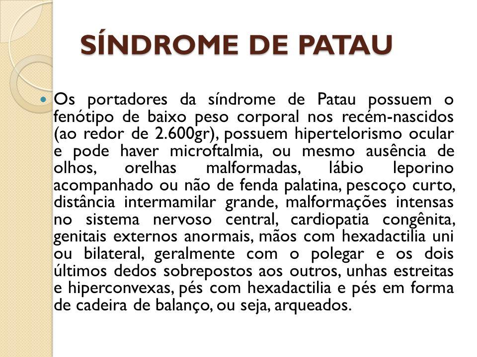 Os portadores da síndrome de Patau possuem o fenótipo de baixo peso corporal nos recém-nascidos (ao redor de 2.600gr), possuem hipertelorismo ocular e pode haver microftalmia, ou mesmo ausência de olhos, orelhas malformadas, lábio leporino acompanhado ou não de fenda palatina, pescoço curto, distância intermamilar grande, malformações intensas no sistema nervoso central, cardiopatia congênita, genitais externos anormais, mãos com hexadactilia uni ou bilateral, geralmente com o polegar e os dois últimos dedos sobrepostos aos outros, unhas estreitas e hiperconvexas, pés com hexadactilia e pés em forma de cadeira de balanço, ou seja, arqueados.