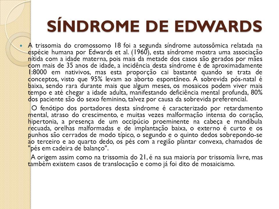 SÍNDROME DE EDWARDS A trissomia do cromossomo 18 foi a segunda síndrome autossômica relatada na espécie humana por Edwards et al. (1960), esta síndrom