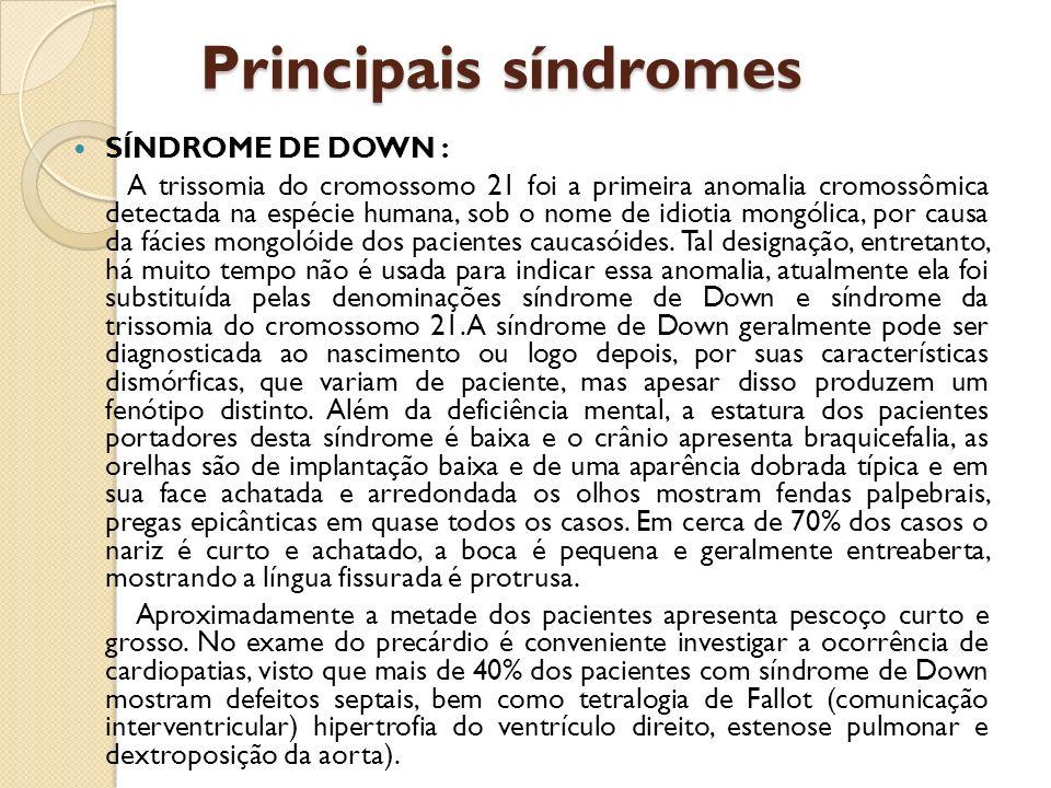 Principais síndromes SÍNDROME DE DOWN : A trissomia do cromossomo 21 foi a primeira anomalia cromossômica detectada na espécie humana, sob o nome de idiotia mongólica, por causa da fácies mongolóide dos pacientes caucasóides.