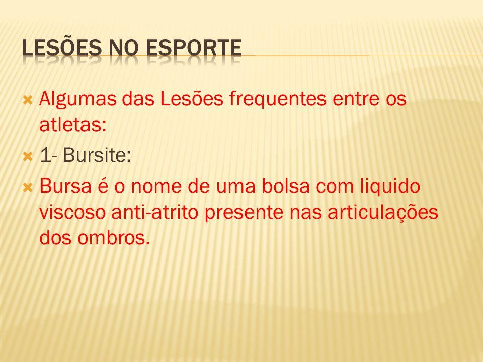 Algumas das Lesões frequentes entre os atletas: 1- Bursite: Bursa é o nome de uma bolsa com liquido viscoso anti-atrito presente nas articulações dos