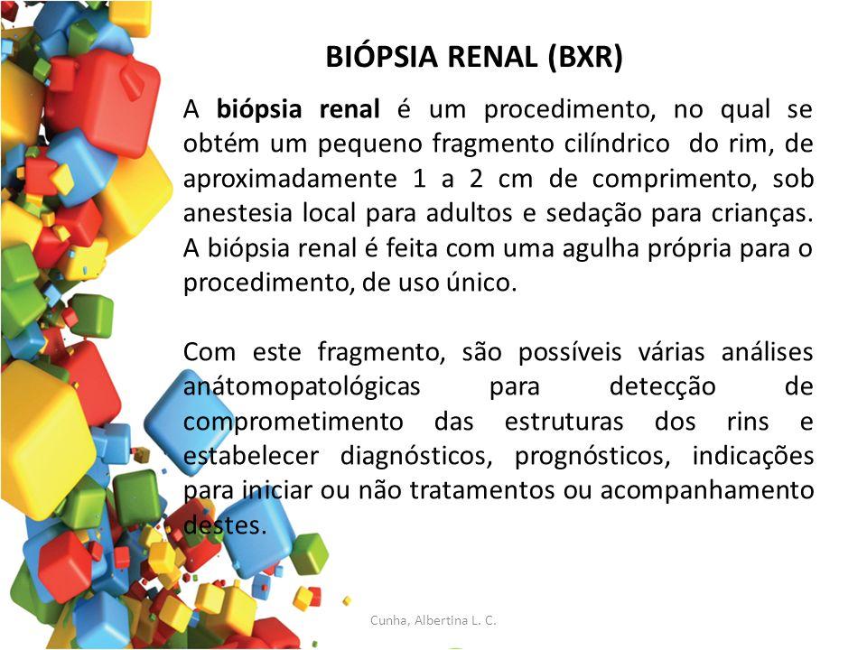 BIÓPSIA RENAL (BXR) A biópsia renal é um procedimento, no qual se obtém um pequeno fragmento cilíndrico do rim, de aproximadamente 1 a 2 cm de comprim