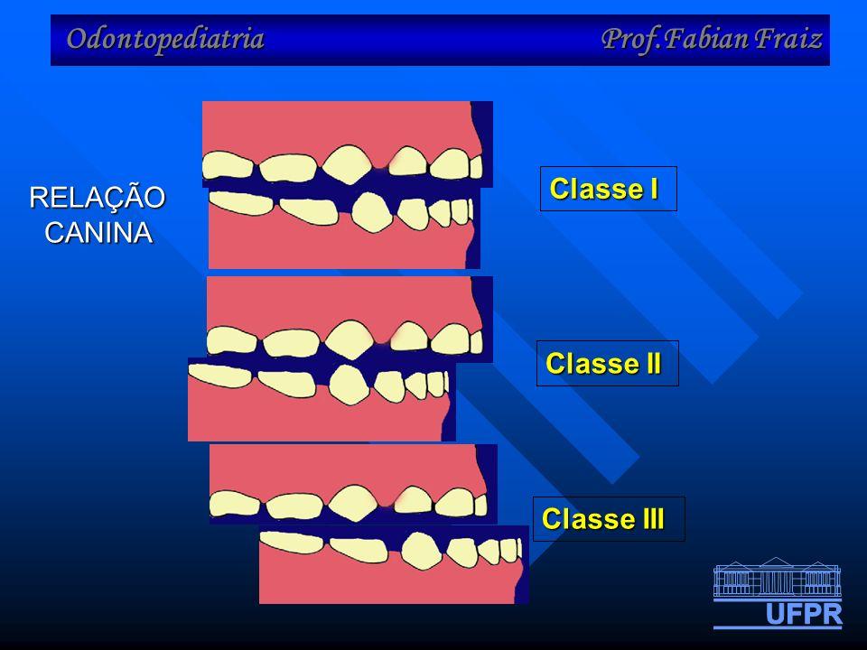 Odontopediatria Prof.Fabian Fraiz Classe I Classe II Classe III RELAÇÃO CANINA