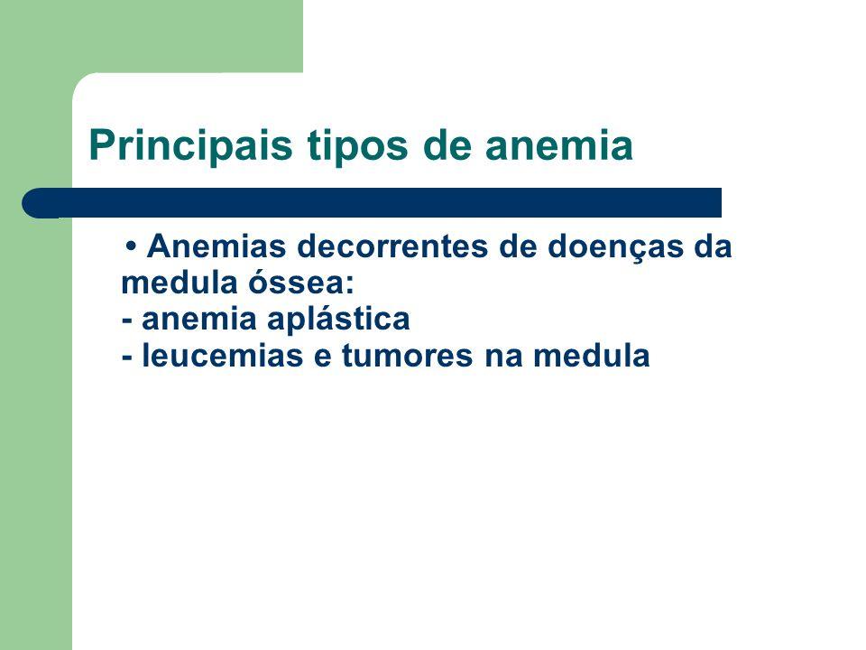 Principais tipos de anemia Anemias decorrentes de doenças da medula óssea: - anemia aplástica - leucemias e tumores na medula