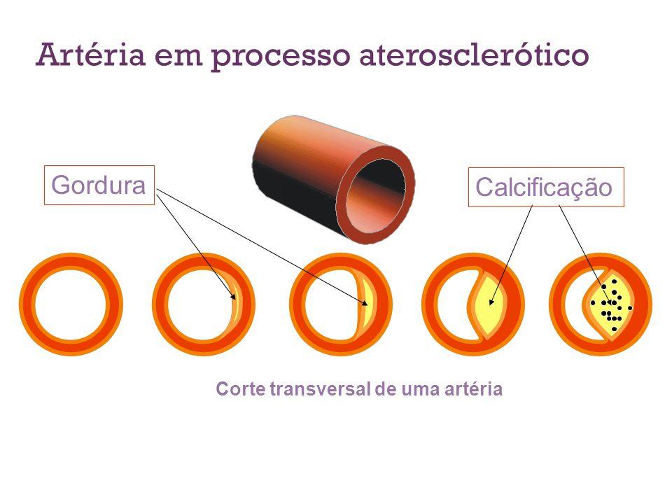 Artéria em processo aterosclerótico Corte transversal de uma artéria Gordura Calcificação