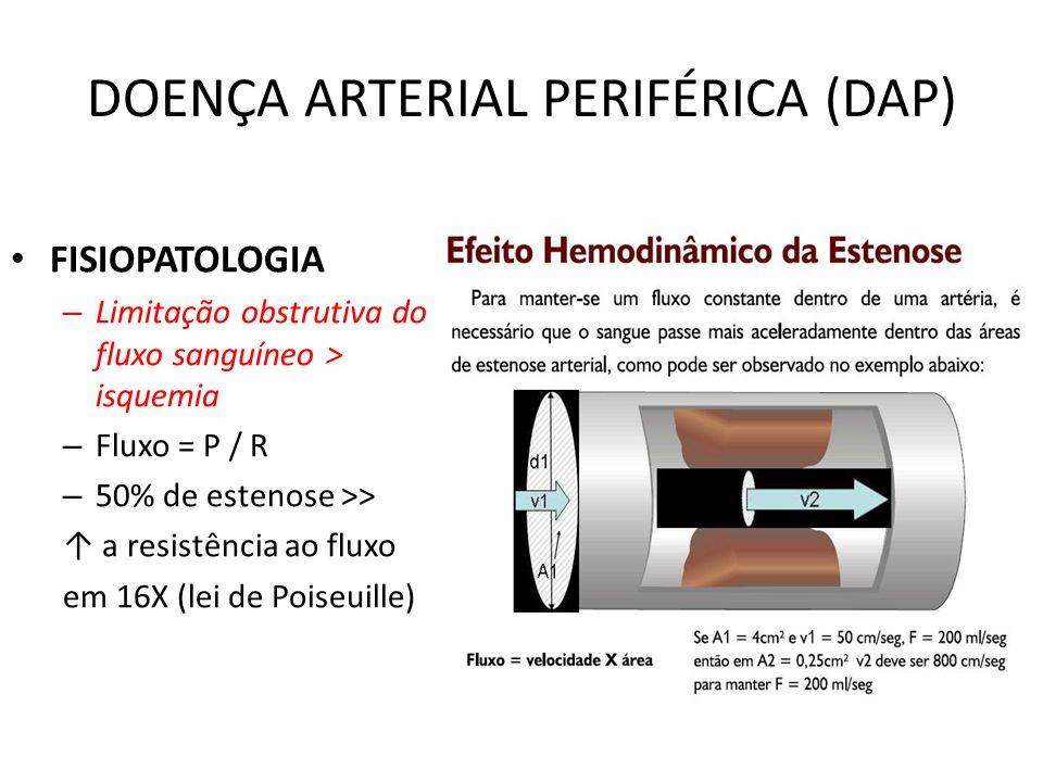 DOENÇA ARTERIAL PERIFÉRICA (DAP) FISIOPATOLOGIA – Limitação obstrutiva do fluxo sanguíneo > isquemia – Fluxo = P / R – 50% de estenose >> a resistência ao fluxo em 16X (lei de Poiseuille)