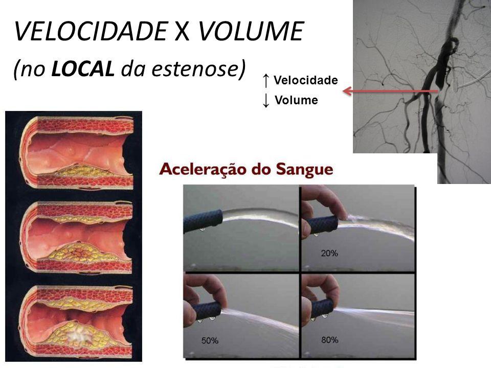 VELOCIDADE X VOLUME (no LOCAL da estenose) Velocidade Volume