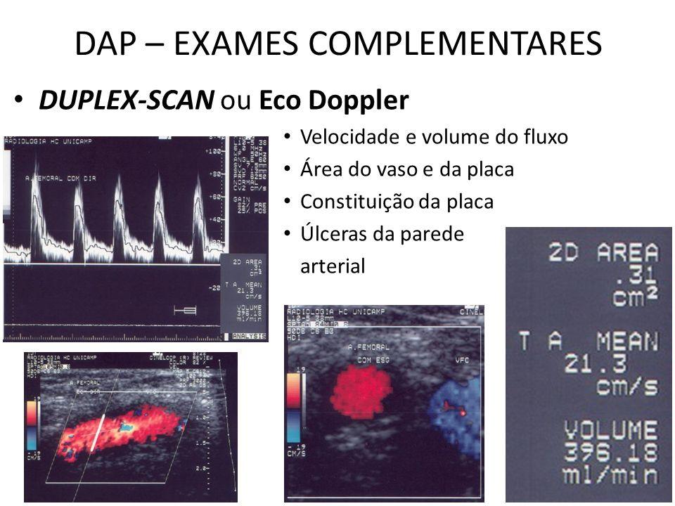 DAP – EXAMES COMPLEMENTARES DUPLEX-SCAN ou Eco Doppler Velocidade e volume do fluxo Área do vaso e da placa Constituição da placa Úlceras da parede arterial
