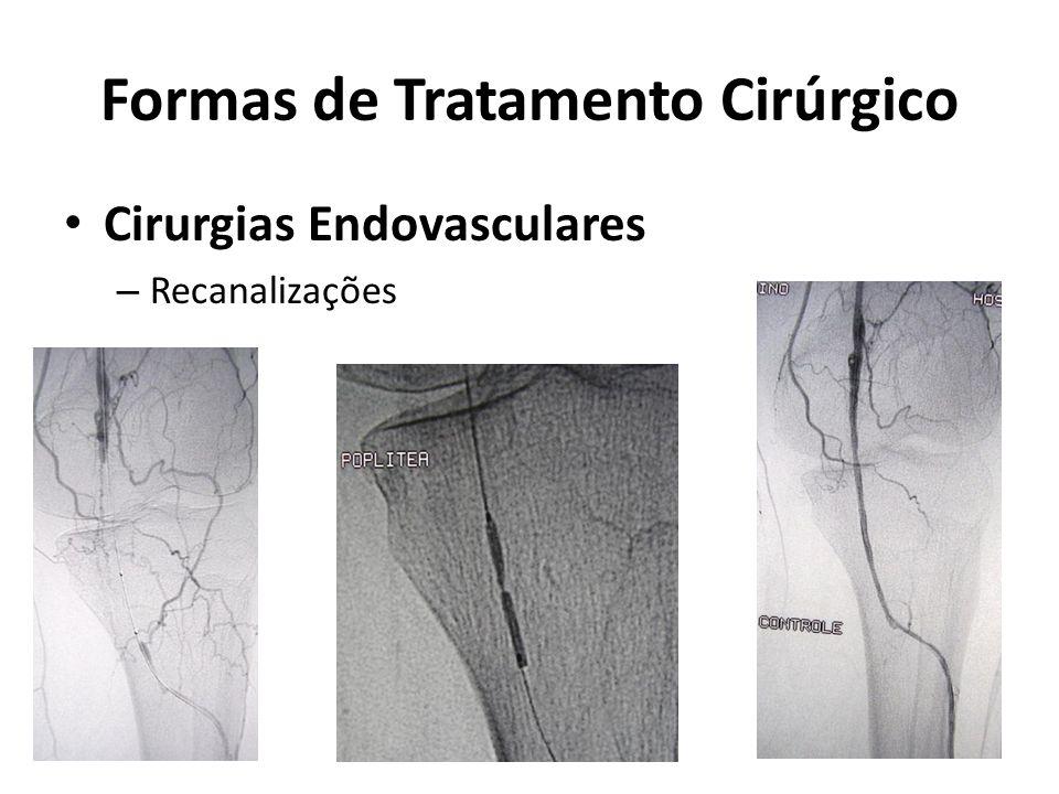 Formas de Tratamento Cirúrgico Cirurgias Endovasculares – Recanalizações