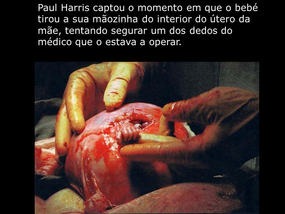 Paul Harris captou o momento em que o bebé tirou a sua mãozinha do interior do útero da mãe, tentando segurar um dos dedos do médico que o estava a op