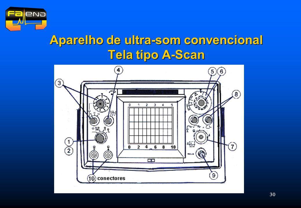 30 Aparelho de ultra-som convencional Tela tipo A-Scan
