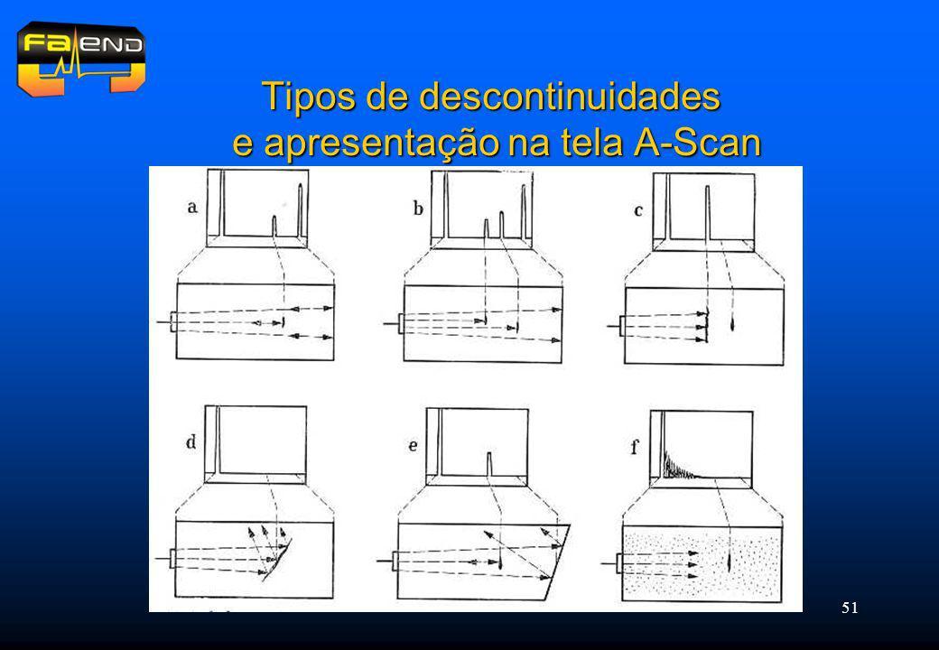 51 Tipos de descontinuidades e apresentação na tela A-Scan