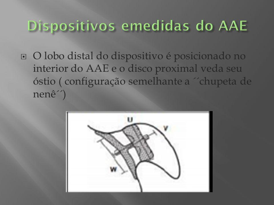 O lobo distal do dispositivo é posicionado no interior do AAE e o disco proximal veda seu óstio ( configuração semelhante a ´´chupeta de nenê´´)