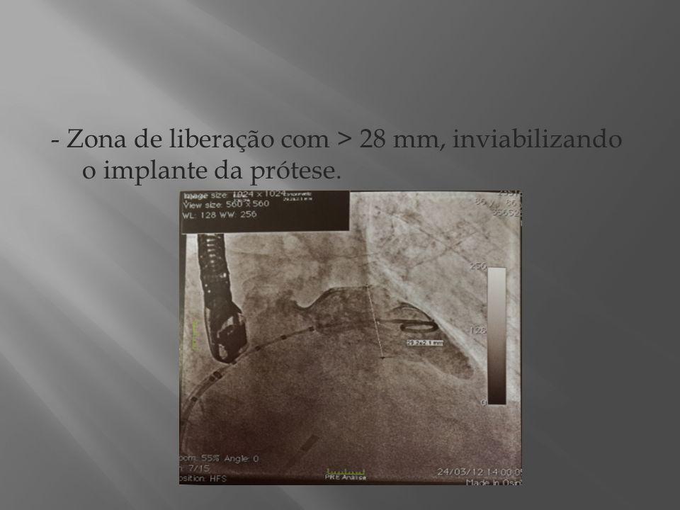- Zona de liberação com > 28 mm, inviabilizando o implante da prótese.
