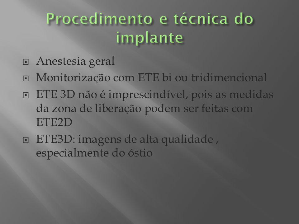 Anestesia geral Monitorização com ETE bi ou tridimencional ETE 3D não é imprescindível, pois as medidas da zona de liberação podem ser feitas com ETE2
