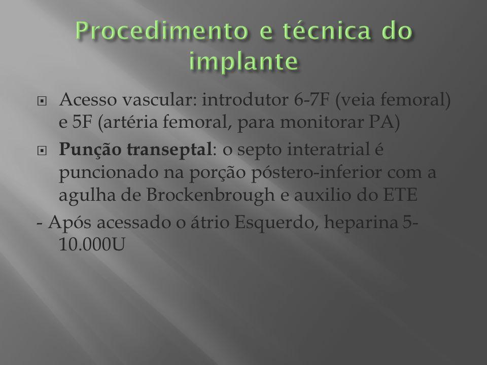 Acesso vascular: introdutor 6-7F (veia femoral) e 5F (artéria femoral, para monitorar PA) Punção transeptal : o septo interatrial é puncionado na porç