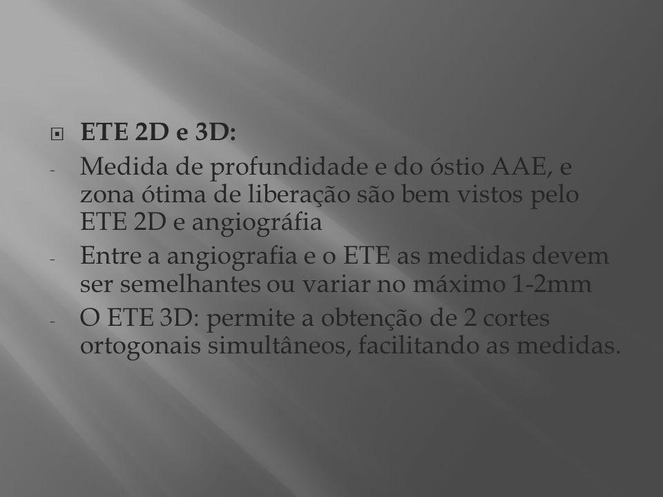 ETE 2D e 3D: - Medida de profundidade e do óstio AAE, e zona ótima de liberação são bem vistos pelo ETE 2D e angiográfia - Entre a angiografia e o ETE