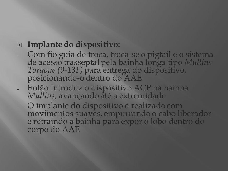 Implante do dispositivo: - Com fio guia de troca, troca-se o pigtail e o sistema de acesso trasseptal pela bainha longa tipo Mullins Torqvue (9-13F) p
