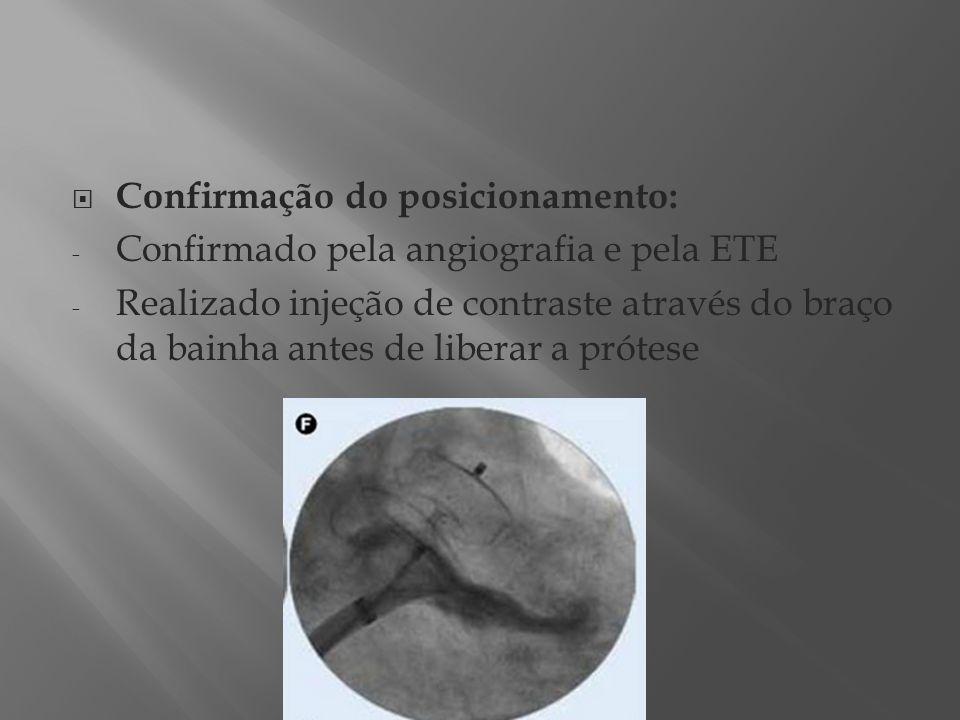 Confirmação do posicionamento: - Confirmado pela angiografia e pela ETE - Realizado injeção de contraste através do braço da bainha antes de liberar a