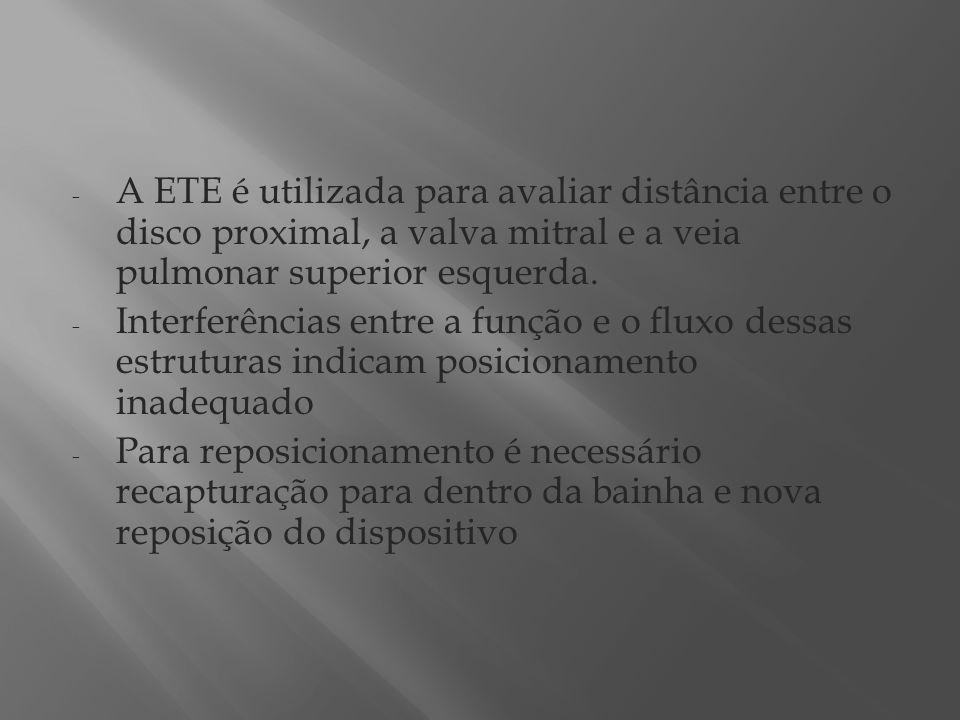 - A ETE é utilizada para avaliar distância entre o disco proximal, a valva mitral e a veia pulmonar superior esquerda. - Interferências entre a função