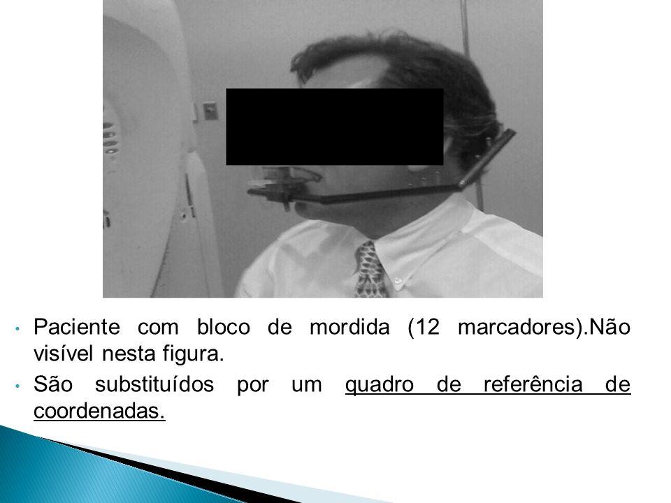 Paciente com bloco de mordida (12 marcadores).Não visível nesta figura.