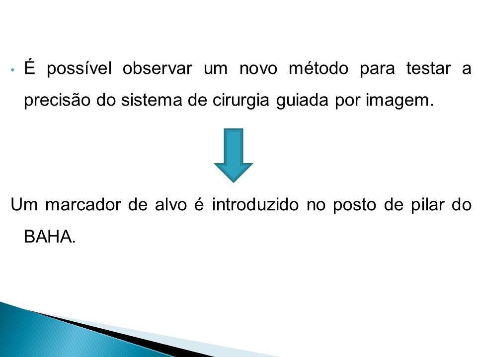 É possível observar um novo método para testar a precisão do sistema de cirurgia guiada por imagem.