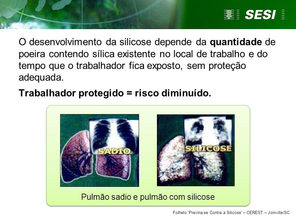 Pulmão sadio e pulmão com silicose Folheto Previna-se Contra a Silicose – CEREST – Joinville/SC O desenvolvimento da silicose depende da quantidade de