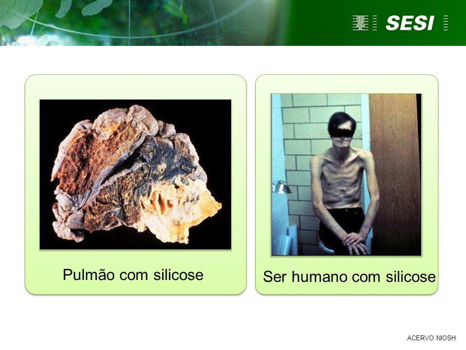 ACERVO NIOSH Pulmão com silicose Ser humano com silicose