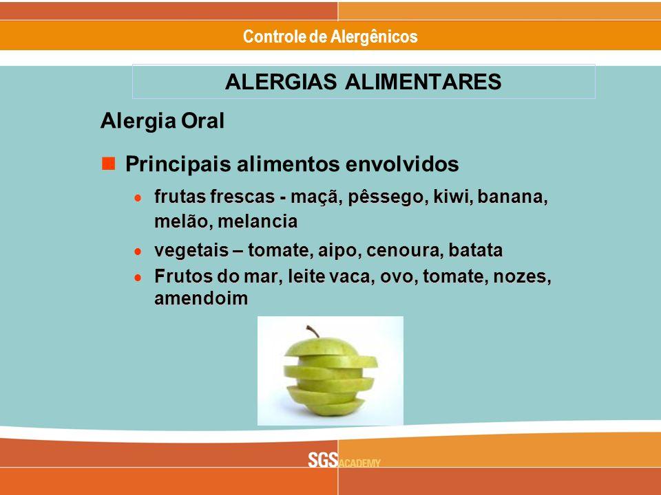 Alergênicos Slide 4 of 17 Controle de Alergênicos A síndrome de alergia oral (SAO) caracteriza-se pelo aparecimento de angioedema e prurido dos lábios, língua, palato e laringe quando o agente causal, habitualmente um fruto fresco ou vegetal, entra em contato com a mucosa oral do indivíduo alérgico.