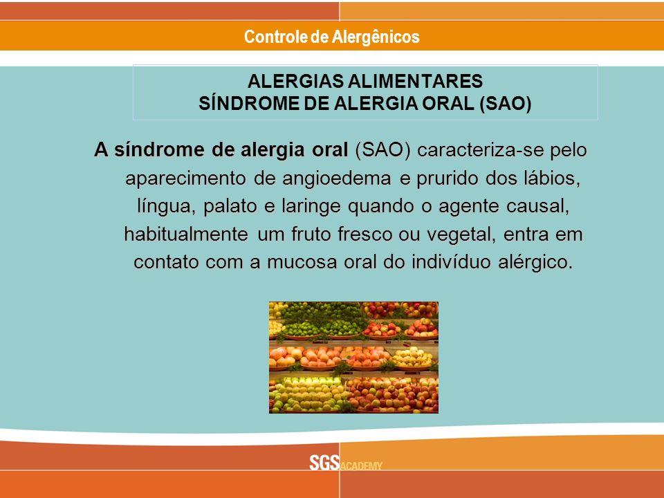 Alergênicos Slide 4 of 17 Controle de Alergênicos A síndrome de alergia oral (SAO) caracteriza-se pelo aparecimento de angioedema e prurido dos lábios