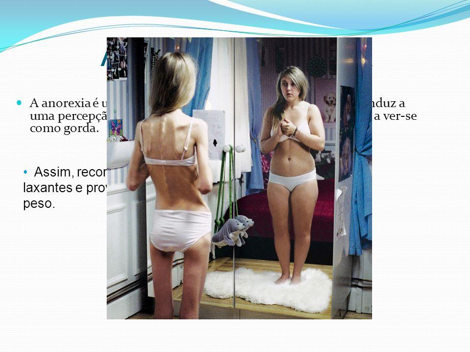 Anorexia e Bulimia A anorexia é uma perturbação alimentar e psicológica que conduz a uma percepção distorcida do próprio corpo, que leva a pessoa a ve