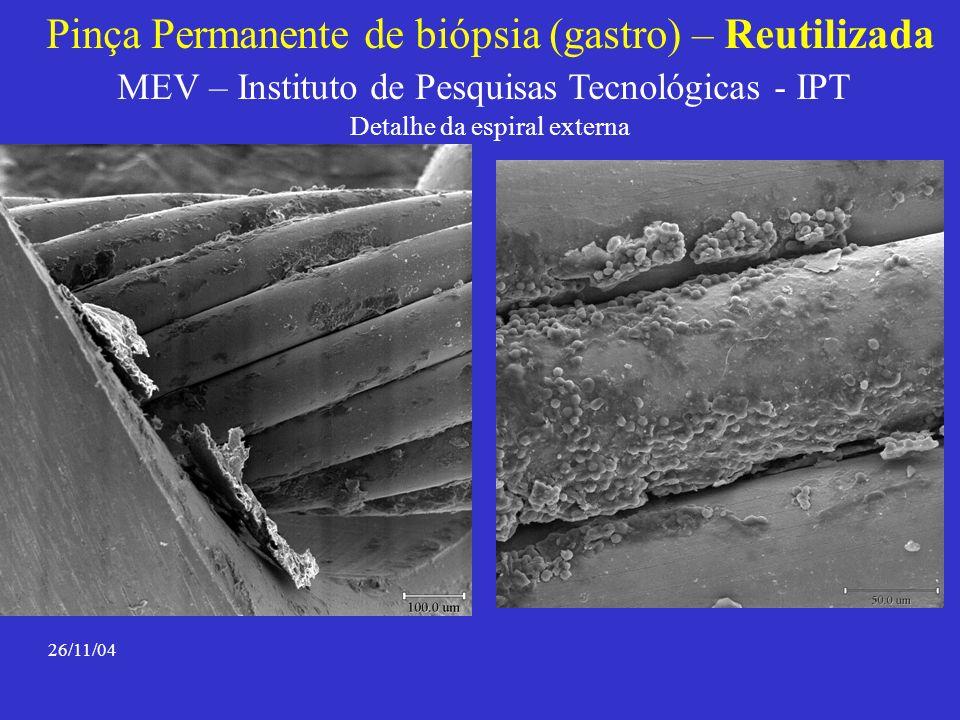 Pinça Permanente de biópsia (gastro) – Reutilizada MEV – Instituto de Pesquisas Tecnológicas - IPT Detalhe da espiral externa 26/11/04
