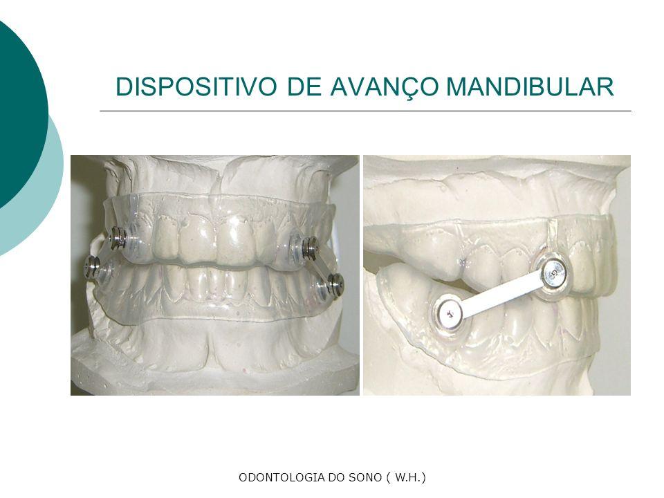 ODONTOLOGIA DO SONO ( W.H.) DISPOSITIVO DE AVANÇO MANDIBULAR