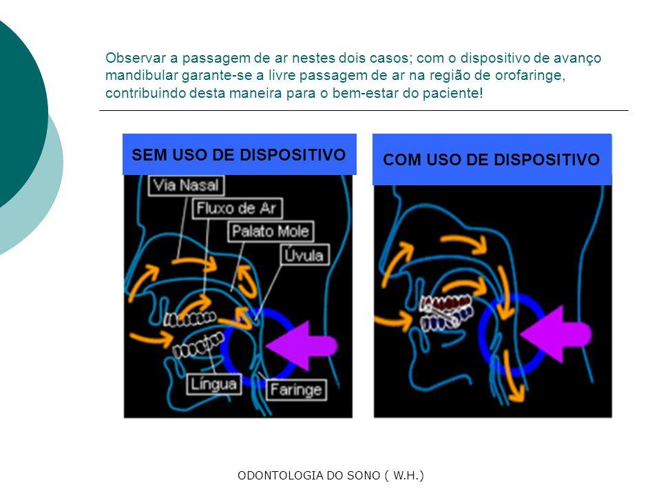 ODONTOLOGIA DO SONO ( W.H.) Observar a passagem de ar nestes dois casos; com o dispositivo de avanço mandibular garante-se a livre passagem de ar na região de orofaringe, contribuindo desta maneira para o bem-estar do paciente.
