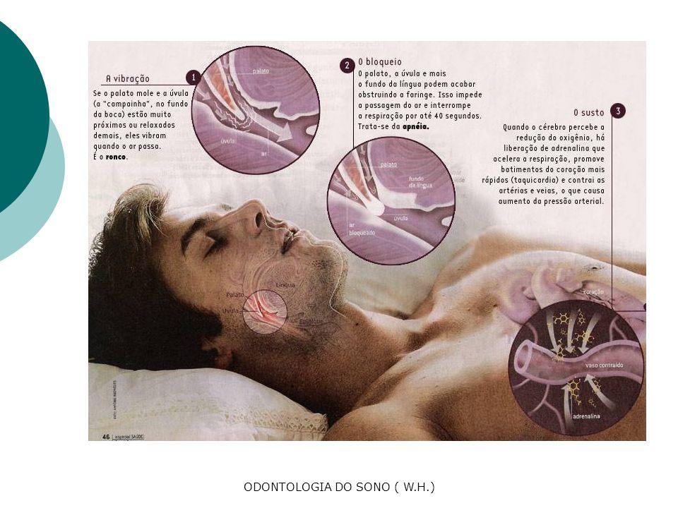 Estes são os problemas que podem ocorrer caso não haja tratamento para o Ronco e a SAOS ( Síndrome da apnéia obstrutiva do sono) HIPERTENÇÃO ARTERIAL HIPERTROFIA VENTRICULAR DIREITA E ESQUERDA ATAQUE CARDÍACO SÚBITO AUMENTO RISCO DE INFARTO CEREBRAL SONOLÊNCIA DIURNA EXCESSIVA ACIDENTES AUTOMOBILÍSTICOS E DE TRABALHO IMPOTÊNCIA SEXUAL GANHO DE PESO INCONTROLÁVEL DEPRESSÃO CAUSAS CONJUGAIS E SOCIAIS