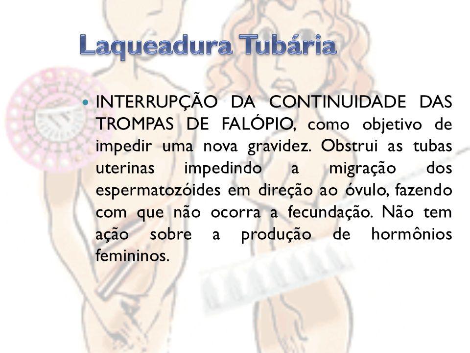INTERRUPÇÃO DA CONTINUIDADE DAS TROMPAS DE FALÓPIO, como objetivo de impedir uma nova gravidez.