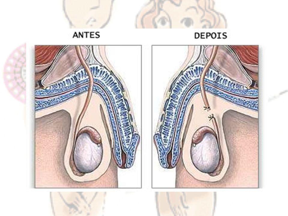 É um método anticoncepcional de uso feminino que consiste num anel flexível, coberto no centro com uma delgada membrana de borracha ou silicone em forma de cúpula que se coloca na vagina cobrindo completamente o colo do útero.