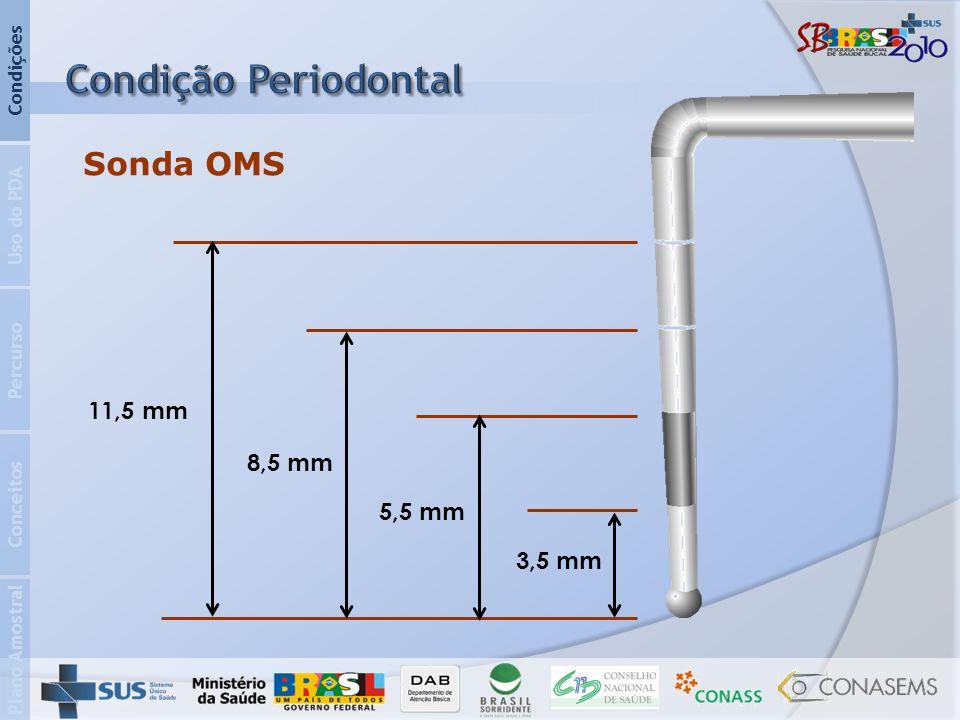 Plano Amostral Conceitos Percurso Uso do PDA Condições Sonda OMS 3,5 mm 5,5 mm 8,5 mm 11,5 mm