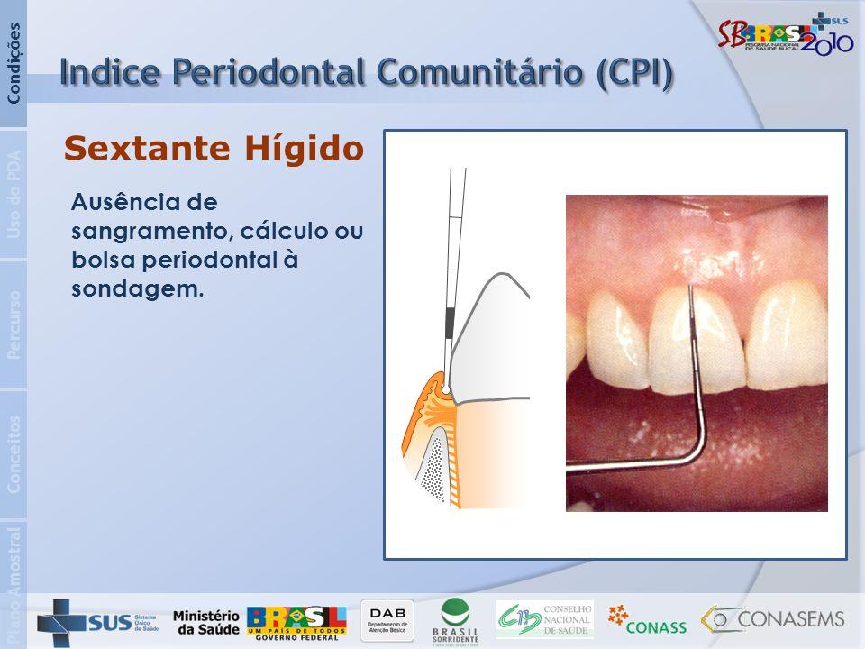 Plano Amostral Conceitos Percurso Uso do PDA Condições Sextante Hígido Ausência de sangramento, cálculo ou bolsa periodontal à sondagem.