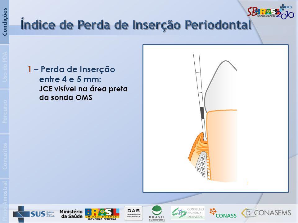 Plano Amostral Conceitos Percurso Uso do PDA Condições 1 – Perda de Inserção entre 4 e 5 mm: JCE visível na área preta da sonda OMS