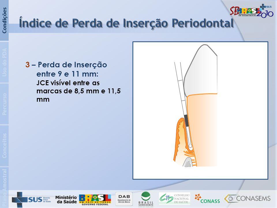 Plano Amostral Conceitos Percurso Uso do PDA Condições 3 – Perda de Inserção entre 9 e 11 mm: JCE visível entre as marcas de 8,5 mm e 11,5 mm