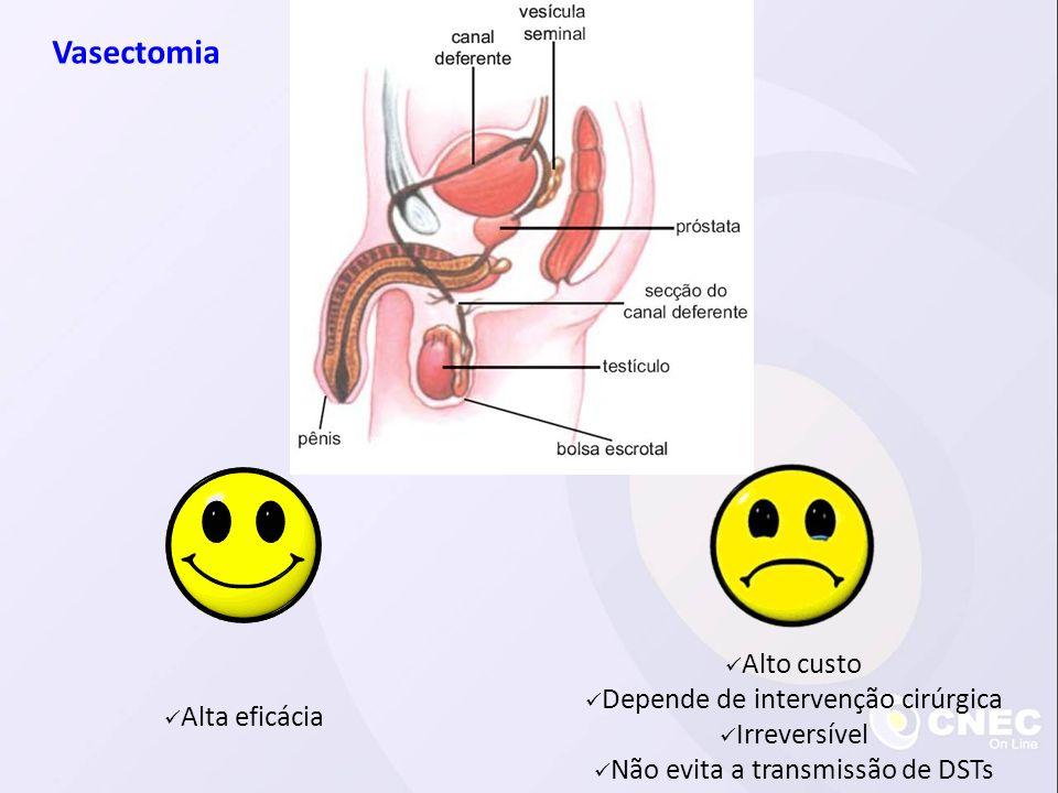 Alta eficácia Alto custo Depende de intervenção cirúrgica Irreversível Não evita a transmissão de DSTs Vasectomia