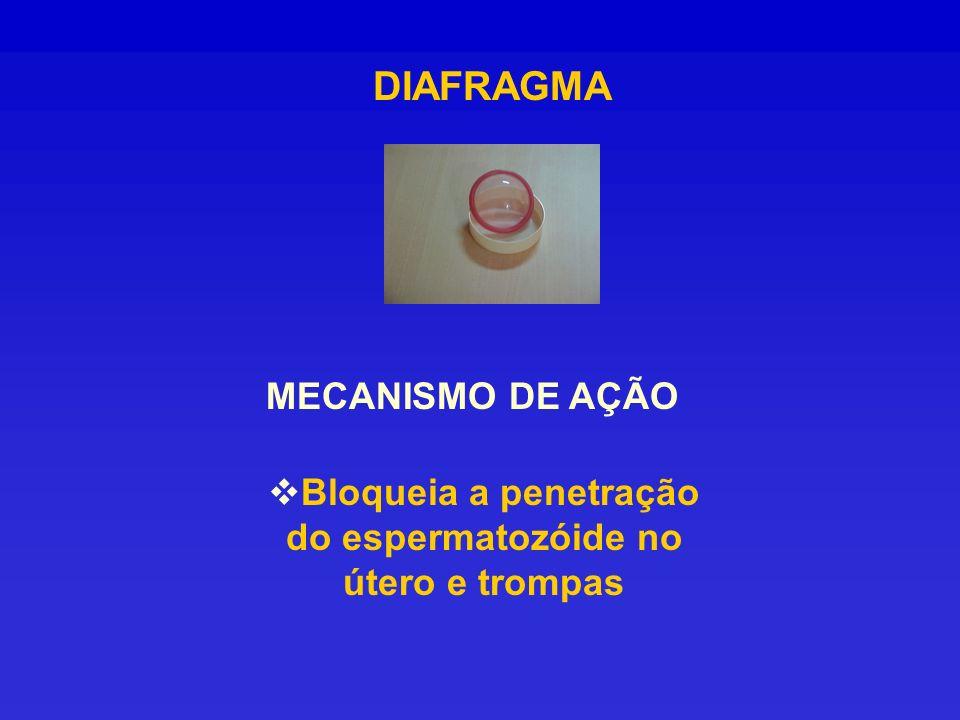 DIAFRAGMA MECANISMO DE AÇÃO Bloqueia a penetração do espermatozóide no útero e trompas