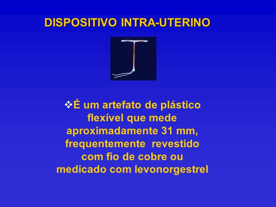 É um artefato de plástico flexível que mede aproximadamente 31 mm, frequentemente revestido com fio de cobre ou medicado com levonorgestrel