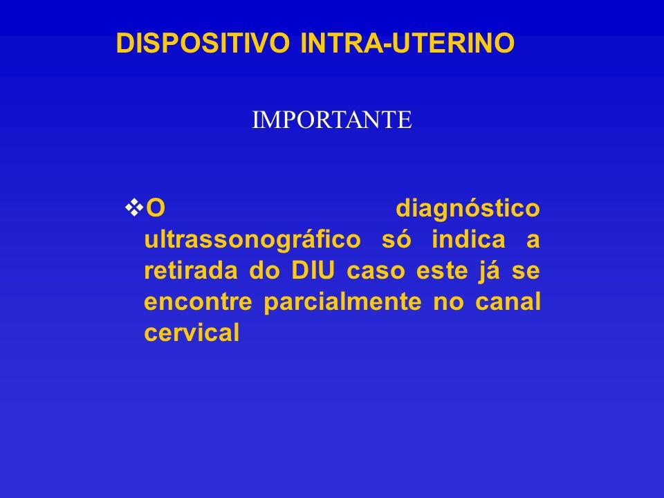 DISPOSITIVO INTRA-UTERINO O diagnóstico ultrassonográfico só indica a retirada do DIU caso este já se encontre parcialmente no canal cervical IMPORTAN